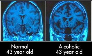 AlcoolCerveau43Ans.jpg