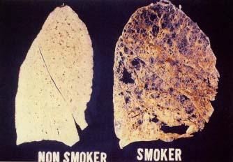 SmokerNonSmokerLung.jpg
